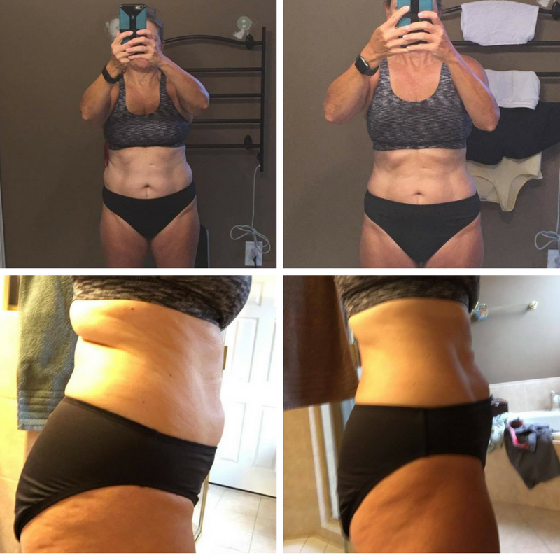 Case Study: Barb, before and after pics after 3 months